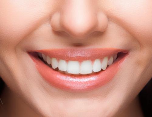 TOP 5 – Hambakliinikud kelle kätte oma naeratus usaldada