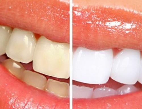 Hambavalgendus kodus või kliinikus?